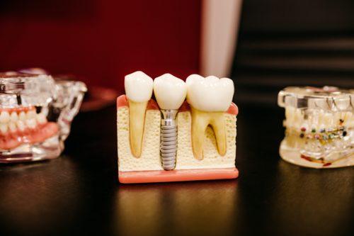 Healthcare Adventures-Dental Implants in Mexico
