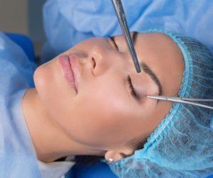 Eyelid surgery costa rica